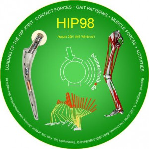 hip98